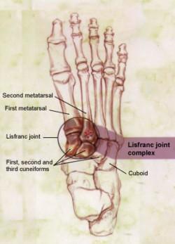 Área do pé conhecida como Lisfranc.